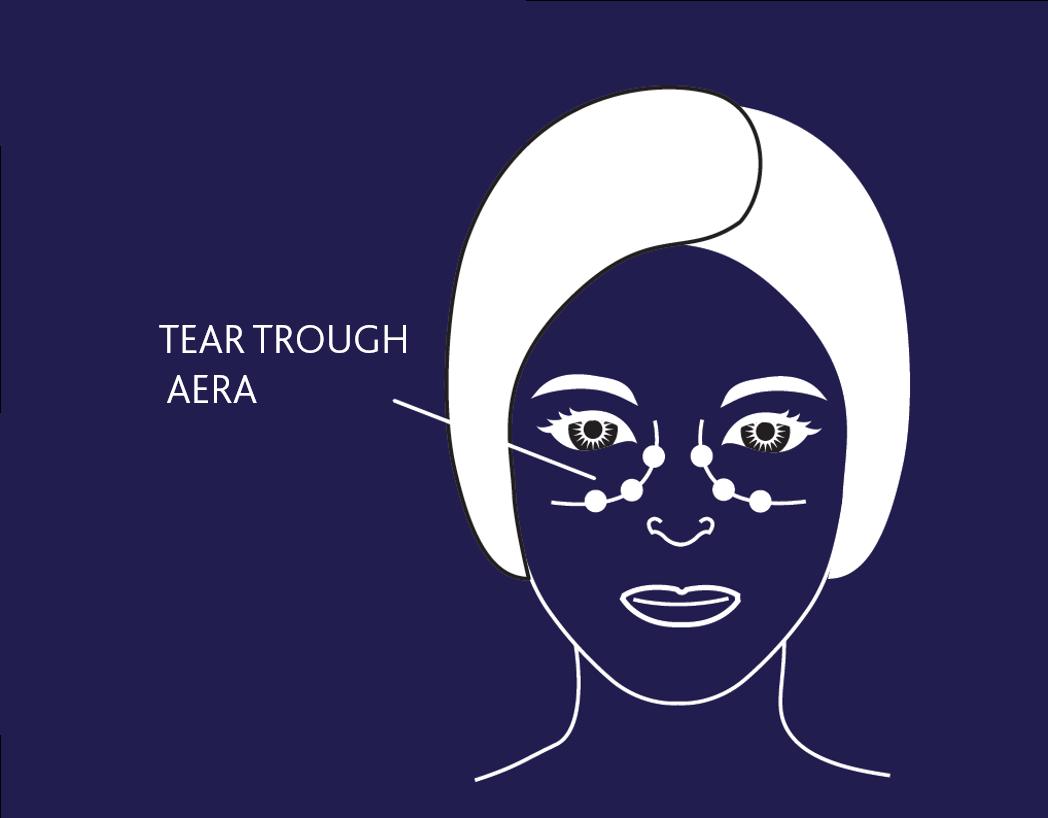 TEAR TROUGH AERA